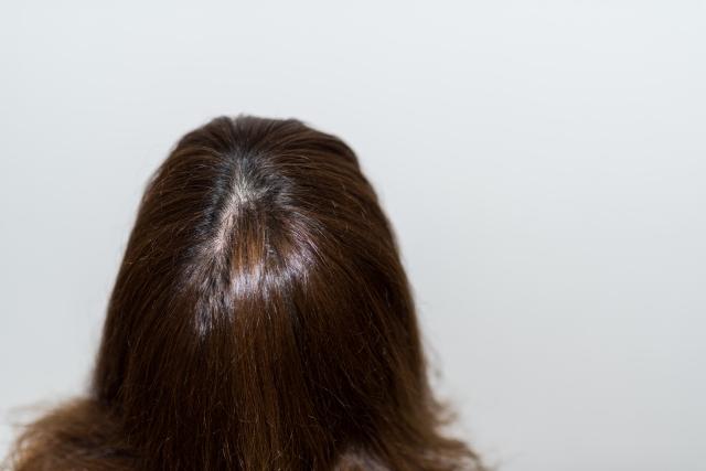 授乳中に髪の毛が抜ける原因は何?いつからいつまで続くの?